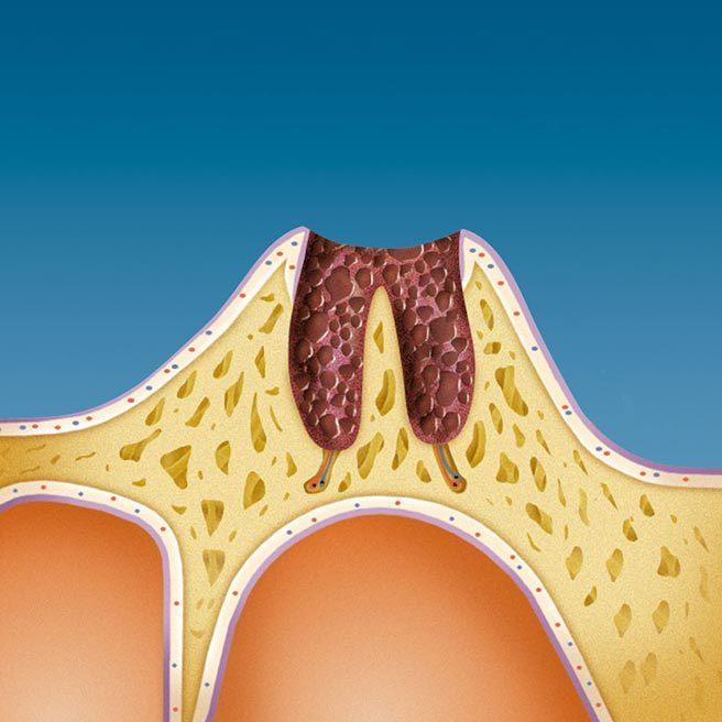 Rezultaty utraty zębów